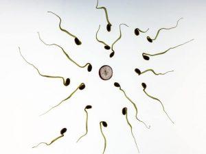 hypnose perinatale